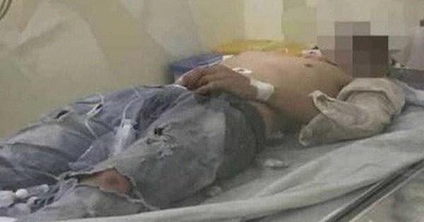 Vụ đôi nam nữ ôm nhau bất động ở ĐH Quốc gia TP HCM: Cô gái đã tử vong