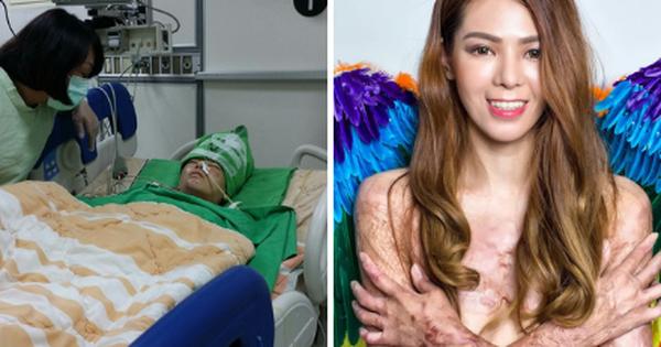 Cơ thể bỏng 91%, cô gái Đài Loan vẫn tự tin khoe nhan sắc xinh đẹp với biệt danh ''nàng tiên cá trong biển lửa''