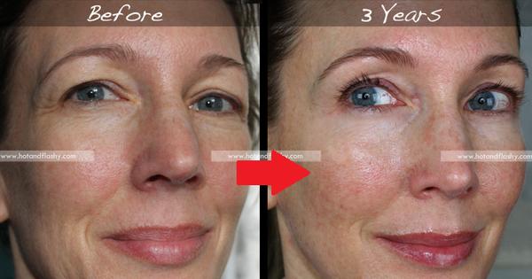 Đắn đo trước hiệu quả chống già của retinol? Minh chứng người phụ nữ sau 3 năm kiên trì với làn da như photoshop sẽ khiến bạn vững tin