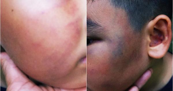 TP.HCM: Cha bức xúc tố con trai 7 tuổi bị đánh chảy máu mũi, phù nề mặt vì nghi trộm gà trong khu chung cư
