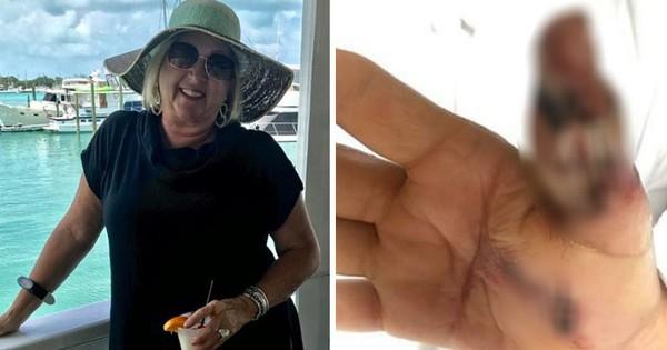 Người phụ nữ suýt mất mạng vì nhiễm khuẩn ăn thịt người chỉ từ một vết cắt nhỏ khi làm móng