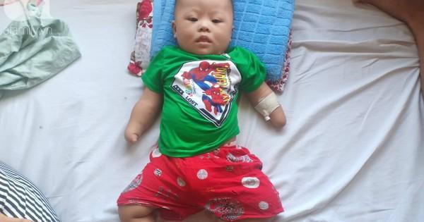 Tâm sự đau đớn của người mẹ khi sinh con trai không có 2 tay:
