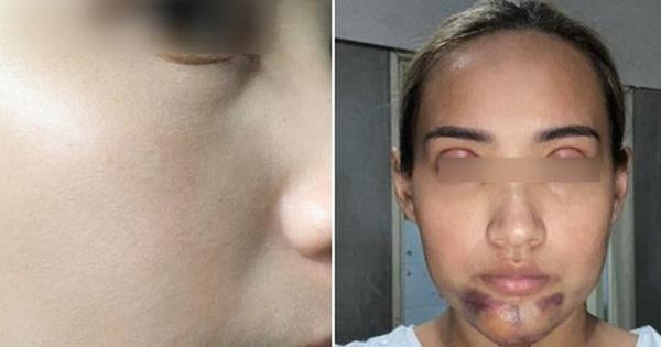 Tiêm collagen xong, cô gái bị bầm tím sưng phồng phần cằm gấp 5 lần khiến MXH ''choáng váng'', bác sĩ chỉ ra nguyên nhân thực sự