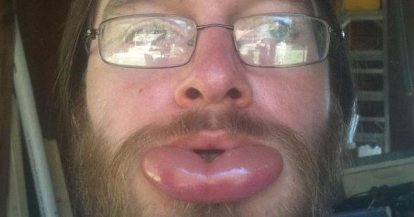 Muốn sở hữu môi trái tim gợi cảm như các hot girl? Hãy để bầy ong chích cho bạn một miếng vào môi