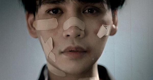 Nguyễn Trần Trung Quân lộ khuôn mặt sầu thảm bị trầy xước, ca khúc mới sẽ nói về những tổn thương suốt thời gian vừa qua?