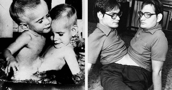 Nhìn lại hành trình 68 năm đồng hành của cặp sinh đôi dính liền sống lâu nhất thế giới: Sinh ra cùng nhau, chết đi cũng không rời
