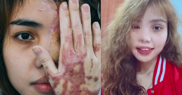 Cô gái bị chồng sắp cưới tạt axit hủy hoại nửa khuôn mặt và hành trình đau đớn để phục hồi nhan sắc