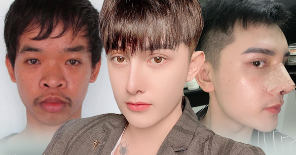 Hành trình lột xác gây chấn động báo Anh của chàng trai Hưng Yên, 25 tuổi đã trải qua hơn 20 lần PTTM khiến cả họ không nhận ra