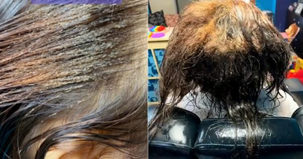 Mang mái tóc bẩn thỉu, lúc nhúc hàng ngàn con chấy đến phòng khám, cô gái khiến chuyên gia thảng thốt vì sốc và kết quả đáng kinh ngạc