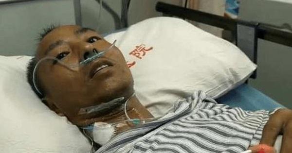 Người đàn ông 40 tuổi bị nhiễm độc niệu, phải chạy thận suốt đời vì ngày hút 3 bao thuốc, tuần nhậu 2 lần từ trẻ