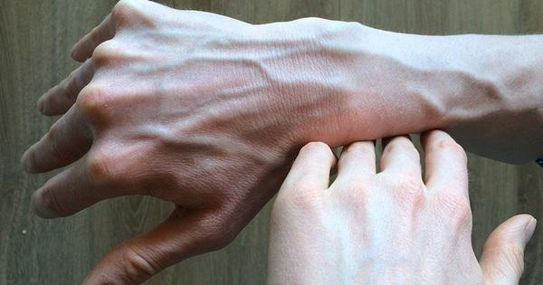 Người có gan kém thường có 4 biểu hiện bất thường ở bàn tay, nếu không có thì gan vẫn rất khỏe mạnh