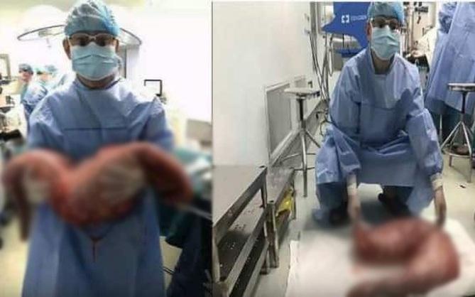 Bị táo bón bẩm sinh, anh chàng khiến các bác sĩ tá hỏa khi phẫu thuật cắt đoạn ruột chứa 13kg chất thải