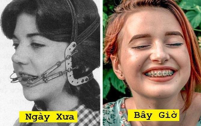 Cận cảnh những phương pháp làm đẹp từ 100 năm trước của chị em phụ nữ, nhiều cái trông không khác gì trong phim kinh dị