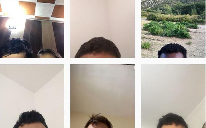 Cậu trai Hy Lạp bí ẩn dành 6 năm tuổi trẻ chỉ để chụp ảnh khoe trán