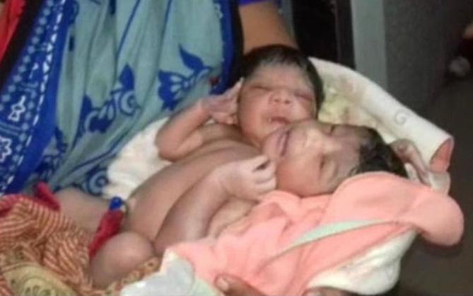 Không đi khám thai thường xuyên, cặp vợ chồng sửng sốt khi sinh ra đứa con có 2 đầu và 3 cánh tay