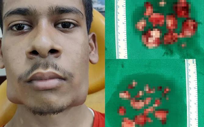Đi viện khám vì mặt biến dạng, chàng trai bị nhổ một phát 82 cái răng nằm trong khối u to đùng dưới hàm