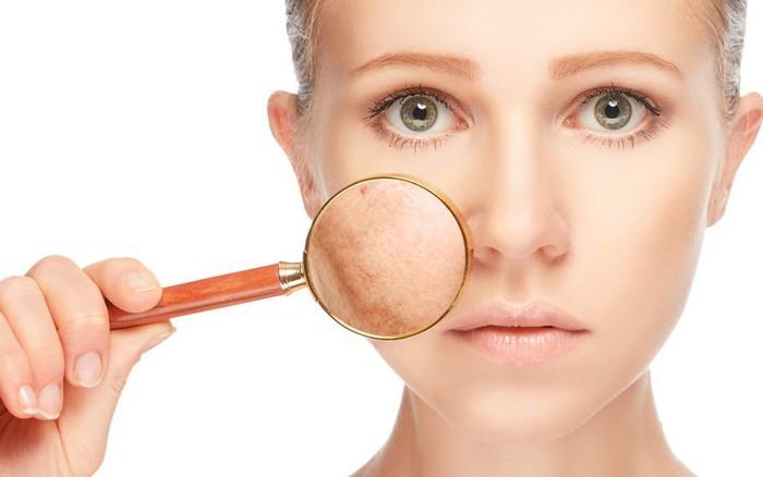 Những dấu hiệu của làn da cho thấy trạng thái sức khoẻ tinh thần của bạn không ổn định