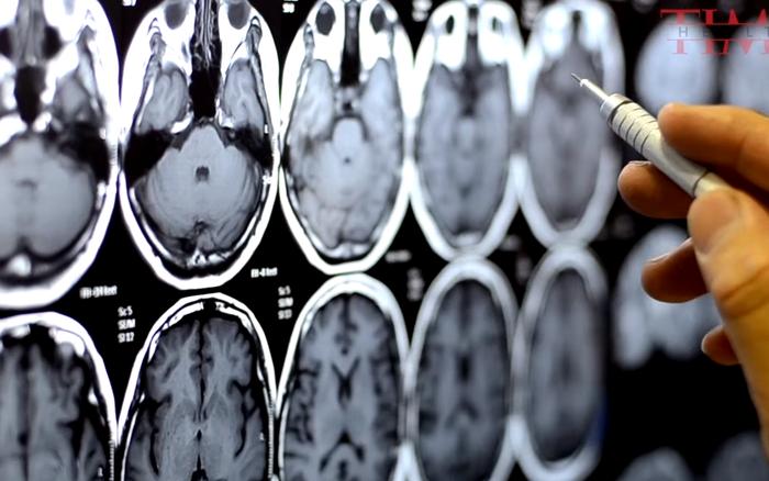 """Càng hoạt động não bộ nhiều, con người càng chết sớm, ít dùng não"""" lại ..."""