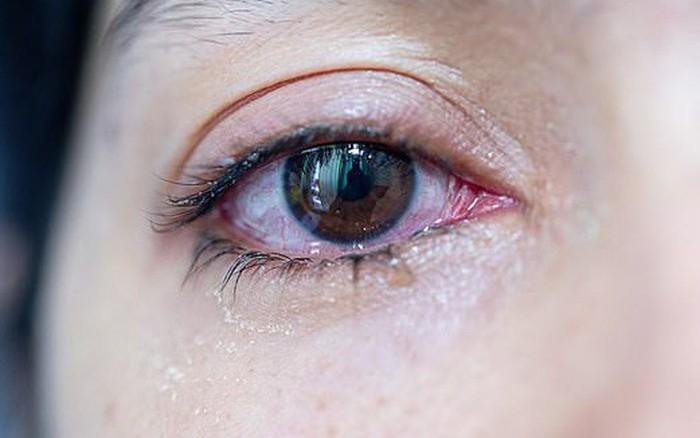 Chuyên gia hé lộ 7 dấu hiệu lạ trên đôi mắt cảnh báo những vấn đề sức khỏe ...