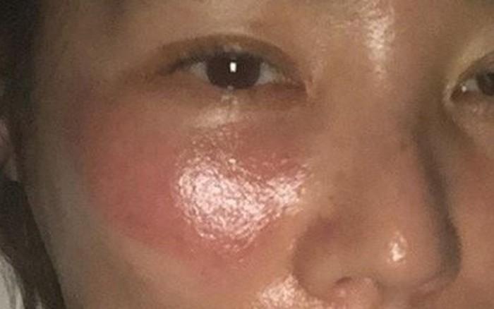 Mỹ nữ xứ Hàn bị bỏng rát mặt vì đắp mặt nạ qua đêm: Lời cảnh báo thói quen ...