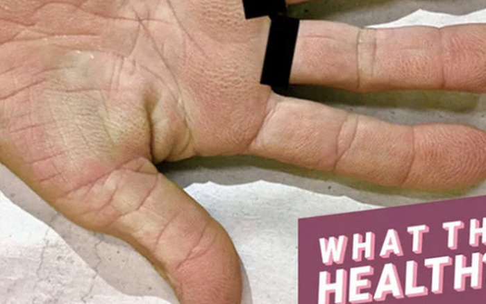 Tay nổi vân lòng bò: dấu hiệu lạ ở bàn tay cảnh báo nguy cơ mắc bệnh ung thư ...