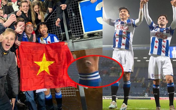 Văn Hậu cầm cờ Việt Nam giữa trời Âu đầy tự hào, fan lại chỉ chú ý đến vết thương từ ...