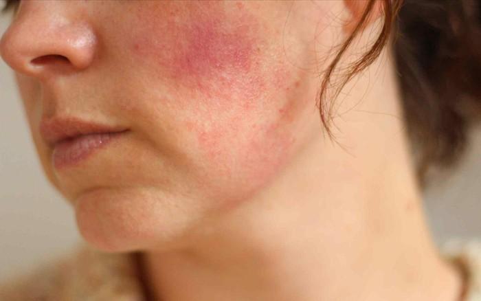 Những sai lầm thường gặp khiến da nhiễm Corticoid trở nên tồi tệ hơn