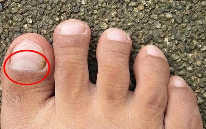 Thận bị tổn thương nếu chân của bạn gặp phải những vấn đề sau