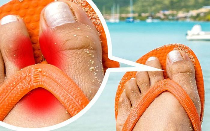 Nếu có thói quen đi dép xỏ ngón thường xuyên, bạn cần biết những tác hại ...