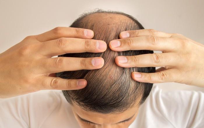 Nghiên cứu mới có thể tìm ra phương thuốc chữa hói đầu dứt điểm