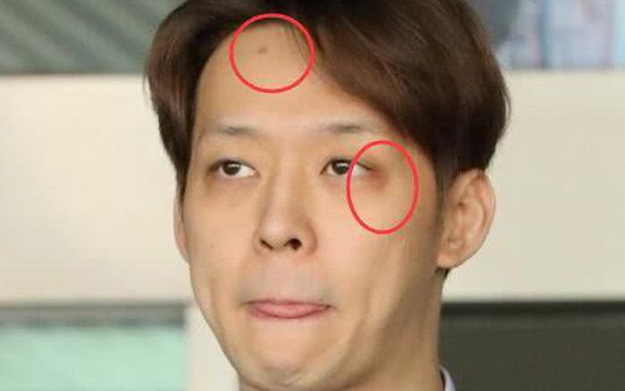 Yoochun dùng ma tuý xong đập đầu vào tường, dấu vết còn y nguyên trên ...