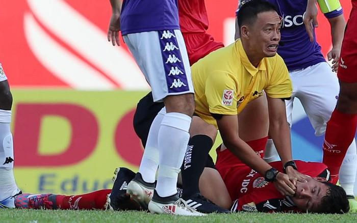Cầu thủ U22 Việt Nam bị lõm xương đầu sau va chạm rợn người tại V.League