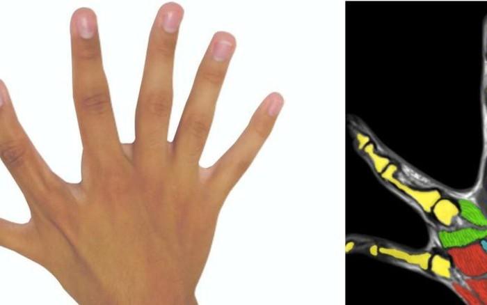 """Dành cho những người mắc chứng """"thừa ngón"""": Liệu bàn tay nhiều hơn 5 ngón ..."""