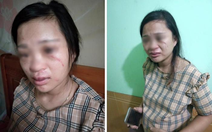 Bạo hành gia đình: Vợ mang thai 8 tháng bị đánh xước xát vì 135k