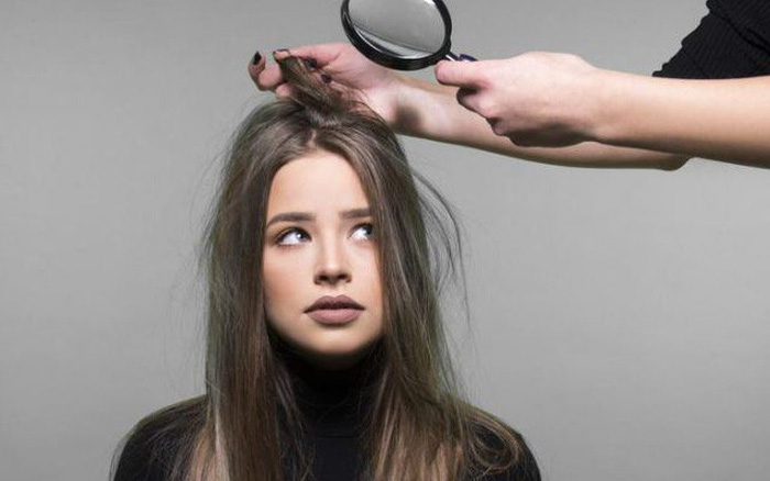 Cẩn thận với những biểu hiện cho thấy bạn đang rụng tóc ở tình trạng đáng báo động