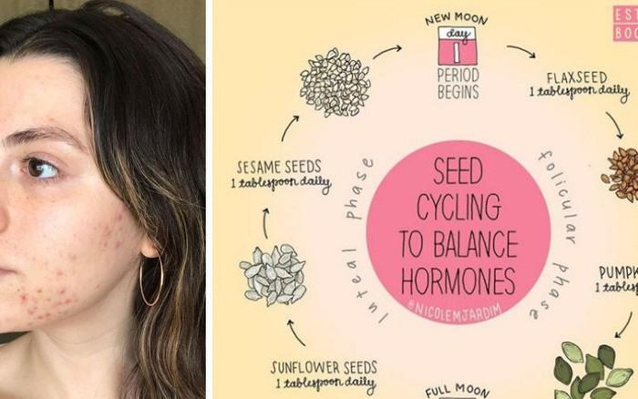 Seed Cycling: phương pháp loại bỏ sạch mụn khi ăn các loại hạt theo chu kì kinh nguyệt