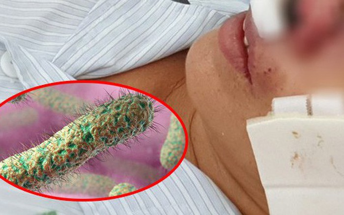 Cảnh báo vi khuẩn ăn thịt người tấn công trong mùa mưa bão, bệnh viện Bạch Mai ...