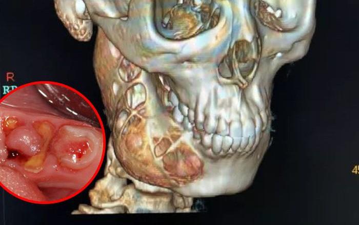 Chủ quan trong việc chăm sóc răng miệng, cậu bé 15 tuổi đi khám mới biết xương hàm ...