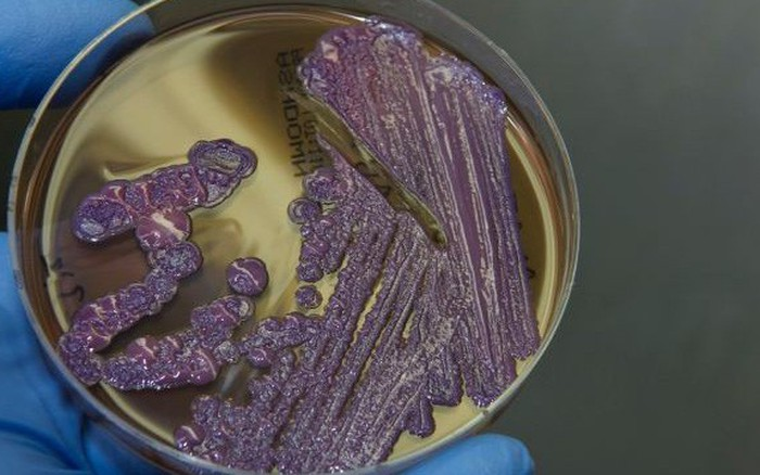 """Giải đáp tất tần tật thông tin về bệnh """"nhiễm khuẩn ăn thịt người"""" - Whitmore, đặc ..."""