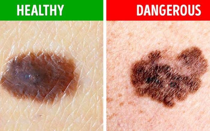 Ngăn ngừa nguy cơ mắc bệnh ung thư từ sớm khi nhận thấy mình có 1 trong 4 dấu hiệu khác lạ