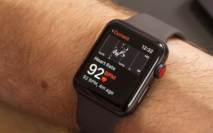 Apple Watch liên tục gửi cảnh báo sai về sức khoẻ người dùng