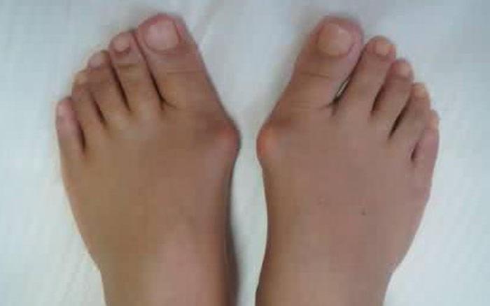 Phụ nữ có nhiều nguy cơ bị vẹo ngón chân cái hơn nam giới và phương pháp để ...