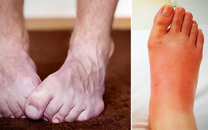 4 biểu hiện ở bàn chân cho thấy bạn cần đến gặp bác sĩ càng sớm càng tốt
