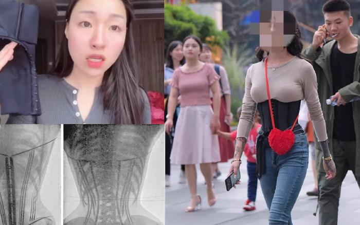 Đeo corset để giảm cân, giảm mỡ bụng sau sinh, một người bị bong tróc tử cung, nội tạng ...