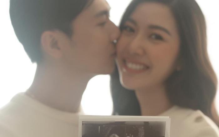 Á hậu Thuý Vân cùng chồng khoe ảnh siêu âm tim thai tháng thứ 6, tiết lộ phút giây hồi hộp khi bước vào phòng khám
