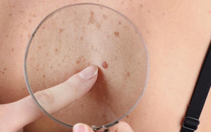 Đừng bỏ qua 4 biểu hiện bất thường trên da vì nó có thể là dấu hiệu sớm của bệnh ung thư