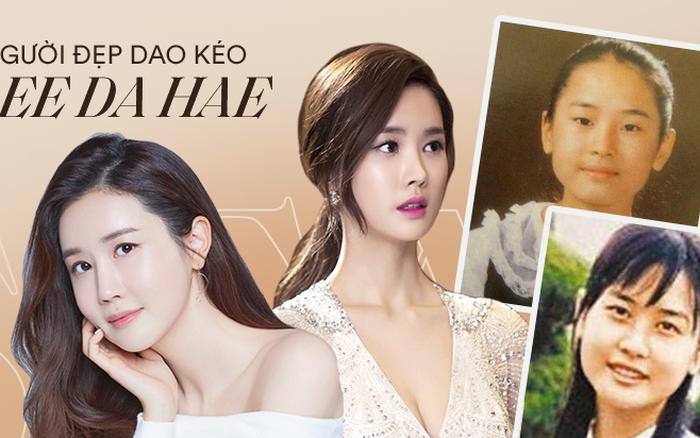 """Mỹ nhân """"dao kéo"""" thị phi nhất Kbiz Lee Da Hae: Hiện tượng 1 thời sụp đổ vì nghi án bán dâm, tình yêu bất ngờ với ca sĩ"""