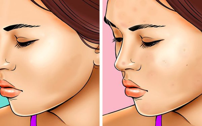 Quên tẩy trang trước khi đi ngủ: có 7 vấn đề sẽ xảy đến với sức khỏe lẫn nhan sắc của bạn
