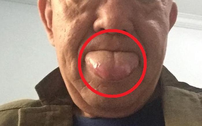 Người đàn ông phải cắt bỏ 1/3 lưỡi do mắc ung thư lưỡi: 2 việc làm xấu nhiều người mắc phải có thể gây ra tình trạng này