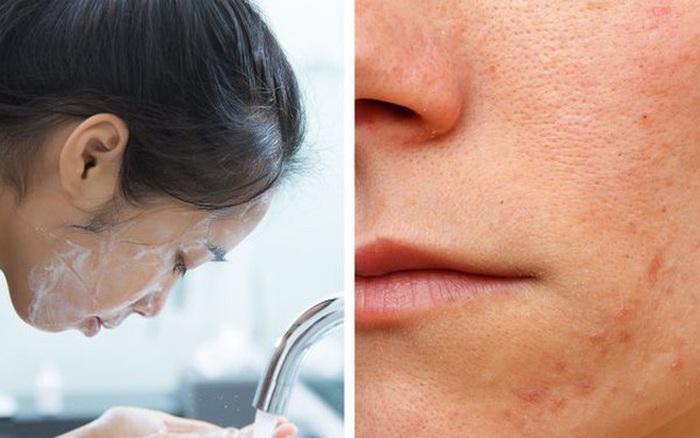 Kể cả mùa đông cũng phải duy trì 6 nguyên tắc khi chăm sóc da này nếu không muốn làn da khô xỉn, thiếu sức sống